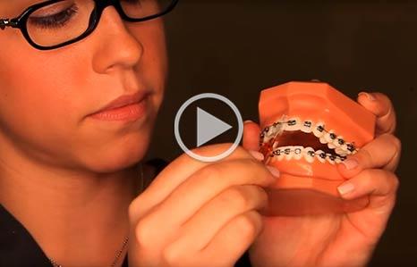 Wearing braces Prestwich Orthodontics in Minot, ND